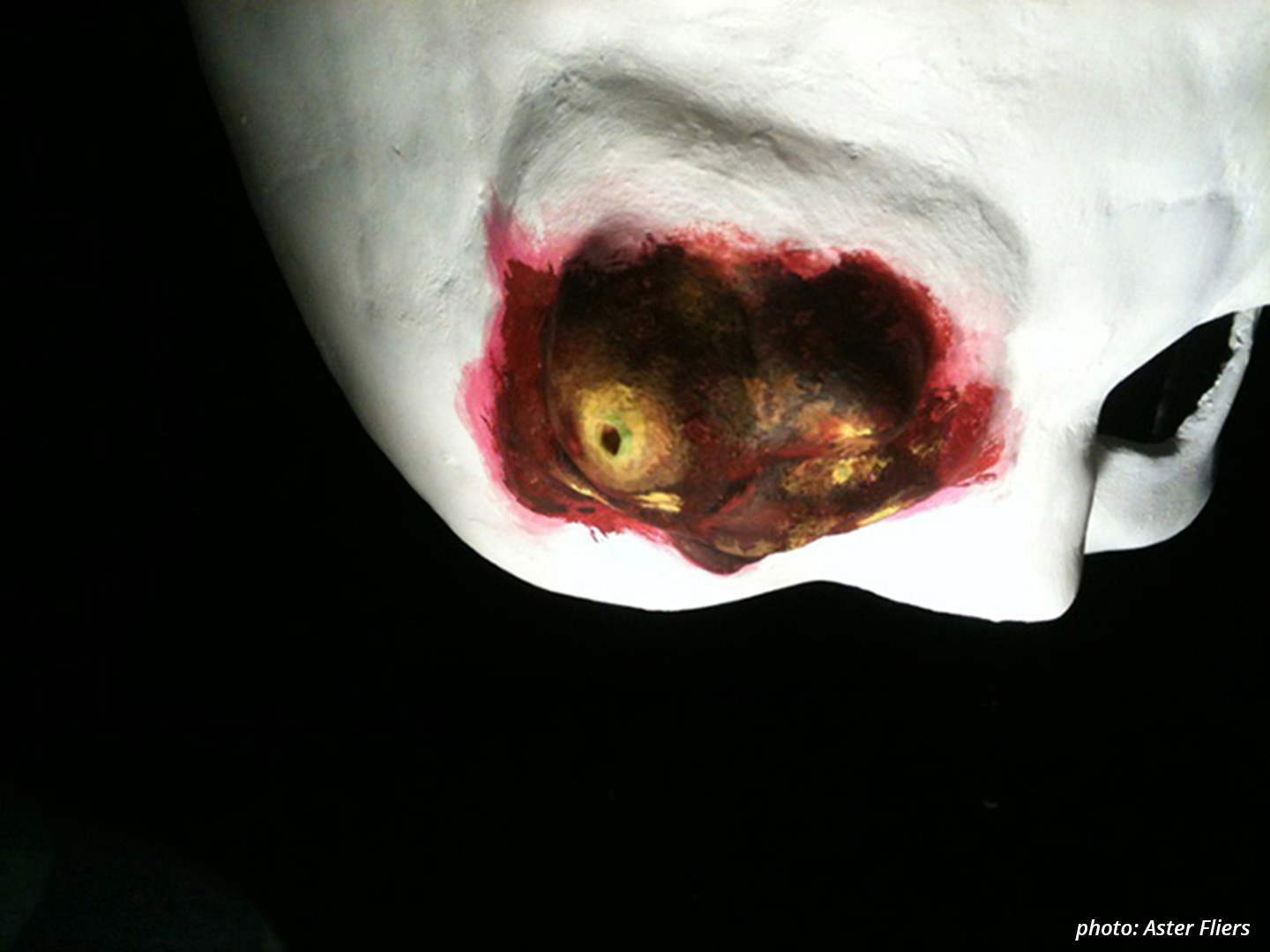 Picture showing the close up of a white mask against a black background. The mask has one eye similar in shape to traditional Venetian masks that only cover the forehead and a little underneath the eye. The other, left eye is covered by a rough bump the colour of dried blood and infected skin, with a yellow and green pustule on top.